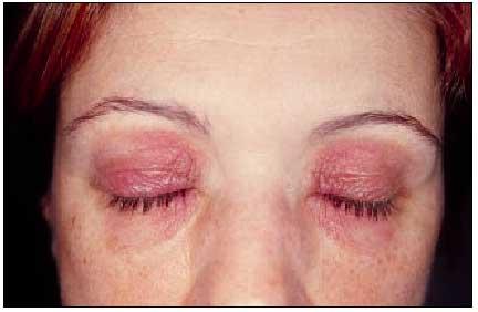 Dermatitis de contacto palpebral